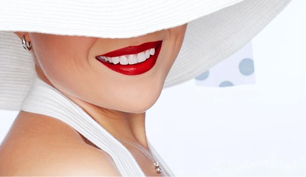 himicheskoe-otbelivanie-zubov